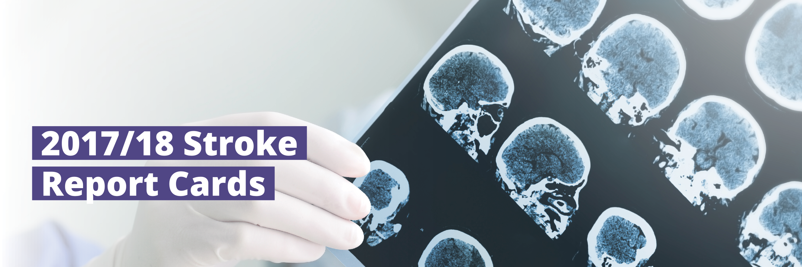 Banner image of a healthcare provider holding up an x-ray of multiple brain scans indicating the 2017/18 Stroke Report Cards are now available.